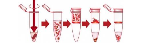 RNA kits